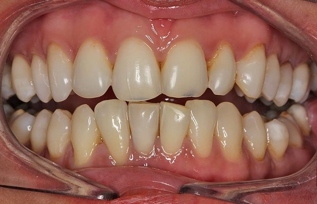 After Internal Whitening