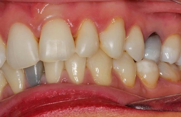 Before Internal Whitening