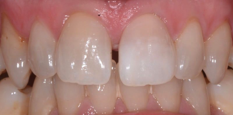Dental Transformation Case 12 After