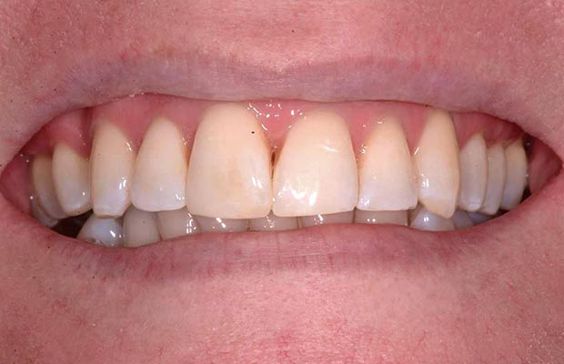 Dental Transformation Case 13 After