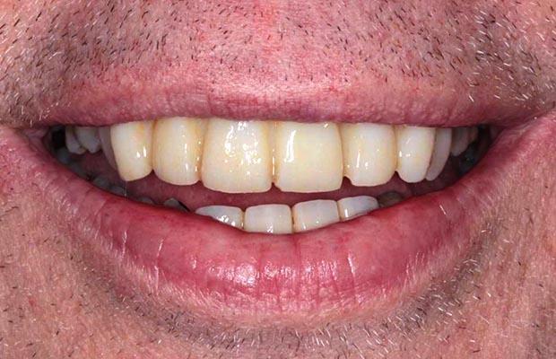 Dental Transformation Case 15 After