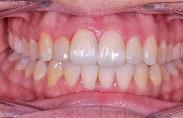 Dental Transformation Case 16 After
